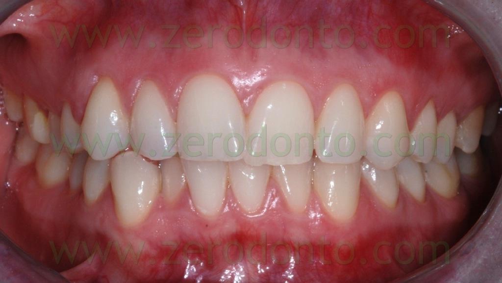 1-allineare denti storti sovrapposti