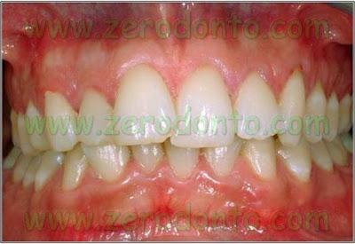 1-denti sovrapposti affollamento dentario