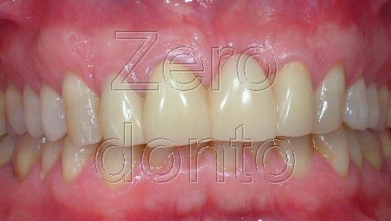 1-ortodonzia invisibile affollamento denti