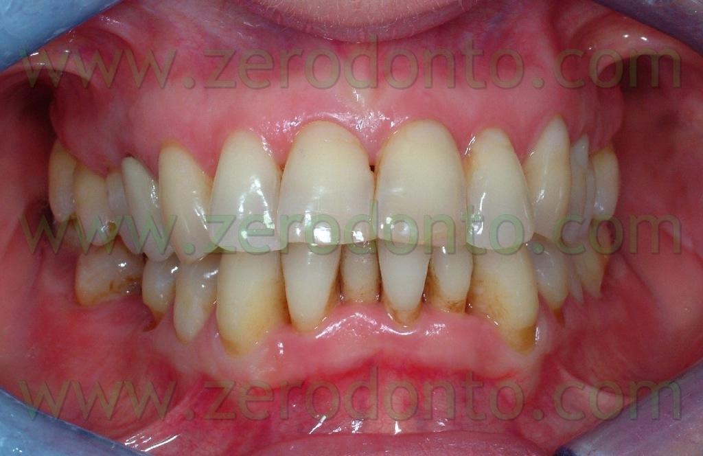 1-ortodonzia invisibile