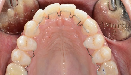 Invisible bracketless orthodontics, nowadays the most thin available appliance.