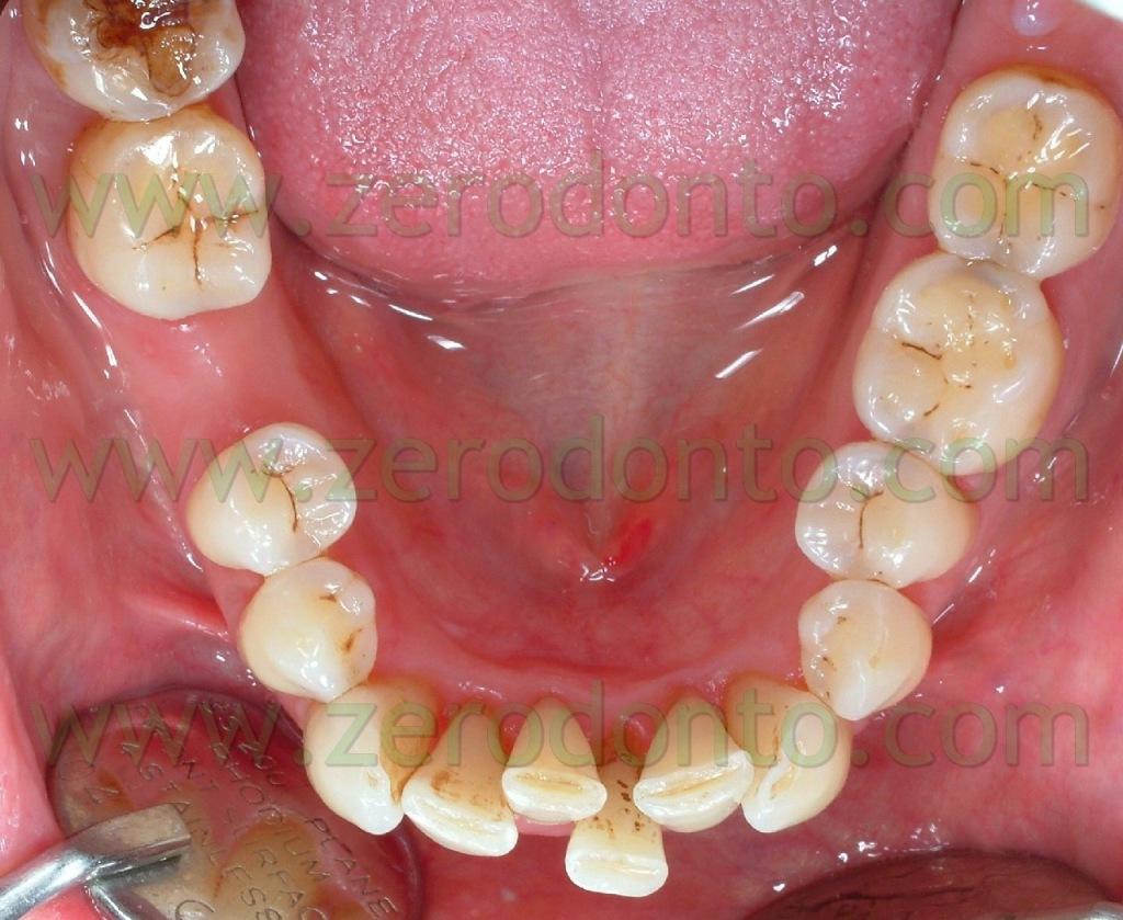 2-allineare denti ortodonzia invisibile