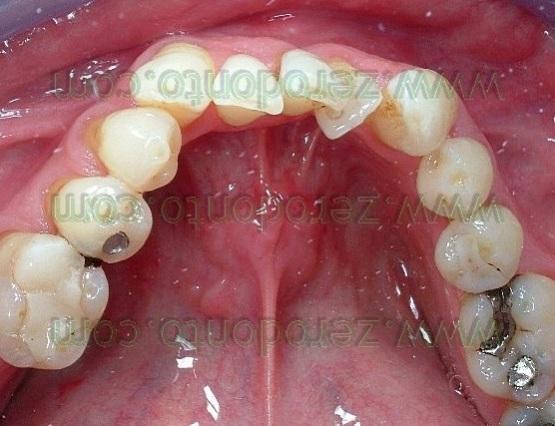 2-denti sovrapposti affolamento