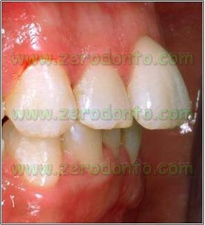 2-denti sporgenti affollamento dentario