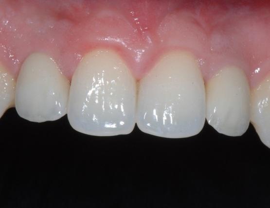 3-agenesia_implantologia