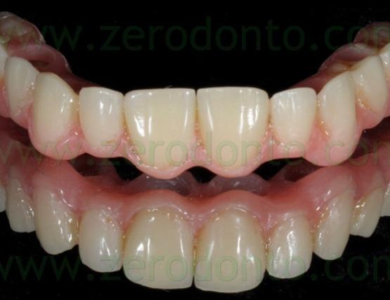 3-nobel biocare full arch zirconia
