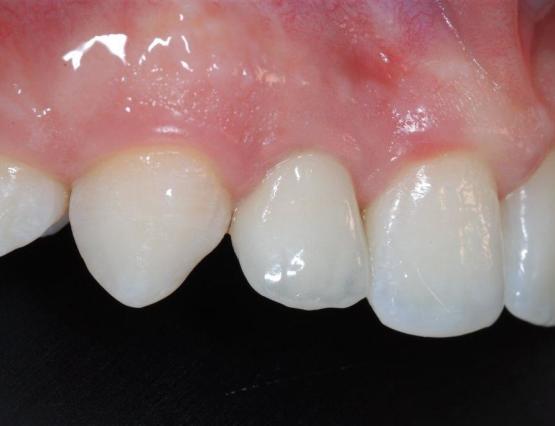 4-agenesia_implantologia