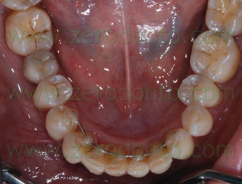 4-ortodonzia linguale invisibile