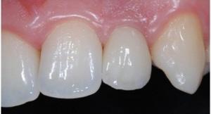 5-agenesia_implantologia_preview