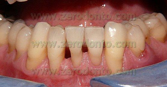 5-denti allineati tecnica innovativa