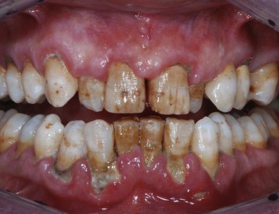 6-tartaro parodontologia napoli 1