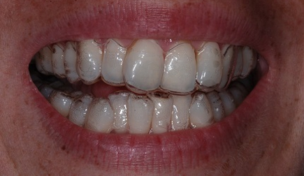 Transparent aligners, apart from being visible, can cause phonetic alterations and stagnation of saliva. Furthermore, they work more slowly and are not suitable for every kind of malocclusion.