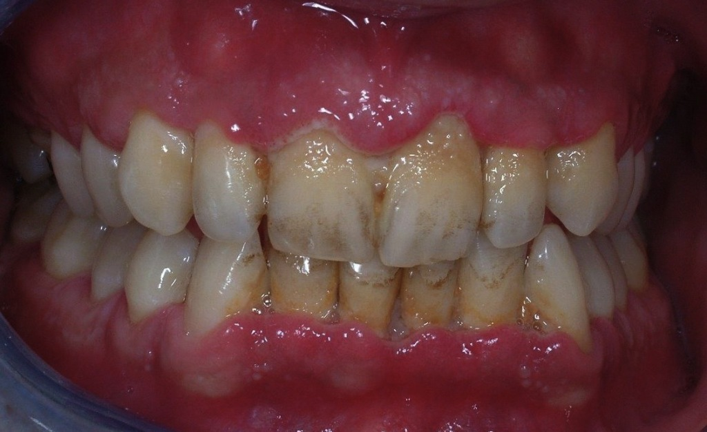7-tartaro parodontite