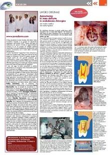 Articolo4_ItalianDentalJournal