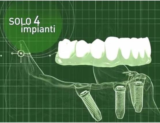 implantologia5