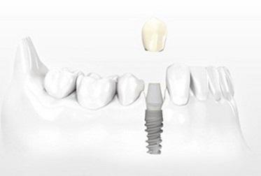 caricare un dente su impianto