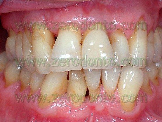 1-denti storti sporgenti casi