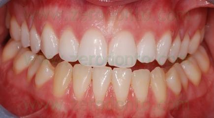 1-sbiancamento dentale denti - prev