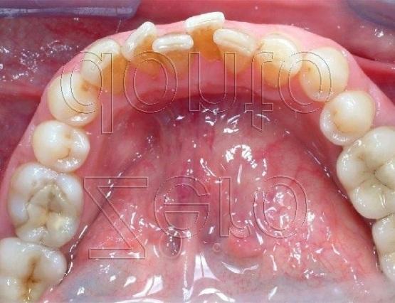 2-denti sovrapposti storti tecnica