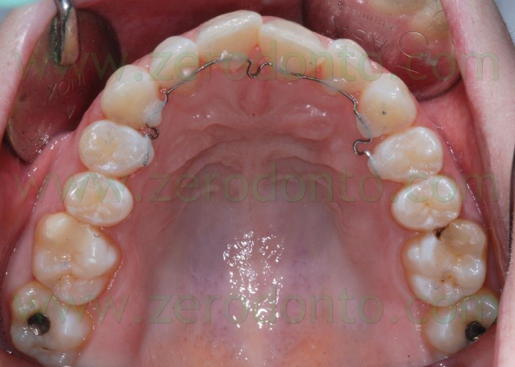 2-ortodonzia invisibile
