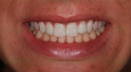 2-sorriso perfetto sbiancamento - prev