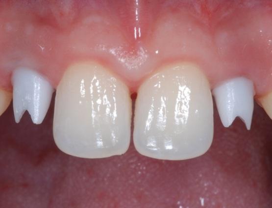 2-trattamento_ortodontico-implantare
