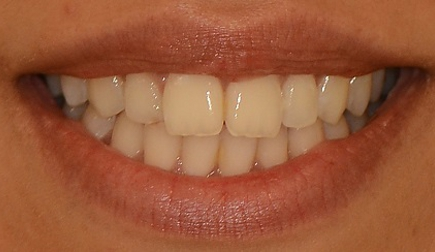 View of the patient's smile with a completely invisible bracketless orthodontic appliance.