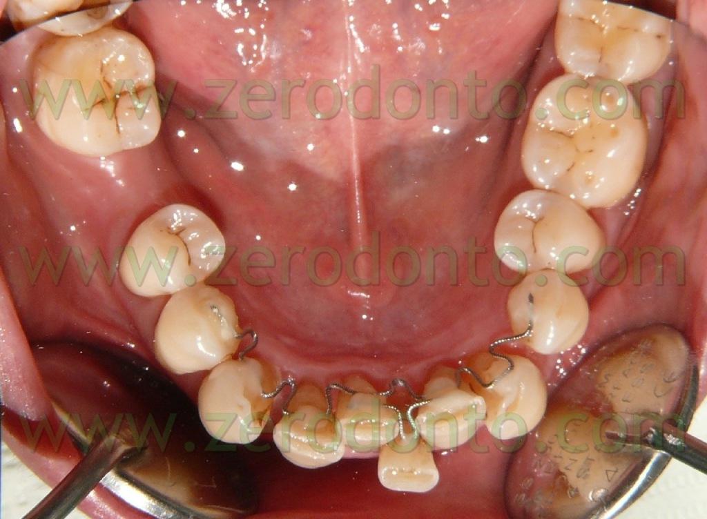 3-denti storti casi complicati