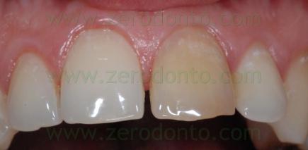 3-sbiancamento denti necrosi gialli - prev