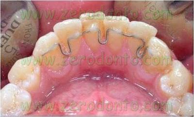 4-allineare denti sorriso perfetto