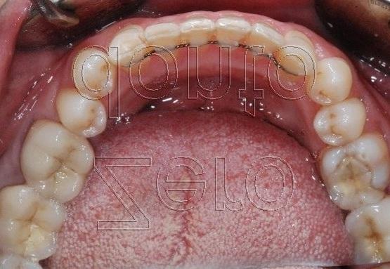 4-denti storti tecnica ortodonzia linguale