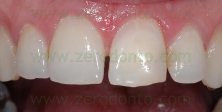 4-sbiancamento denti sbiancare sorriso perfetto - prev