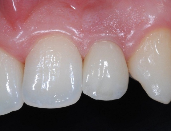 5-agenesia_implantologia