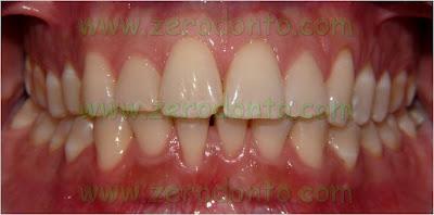 5-sorriso perfetto ortodonzia invisibile