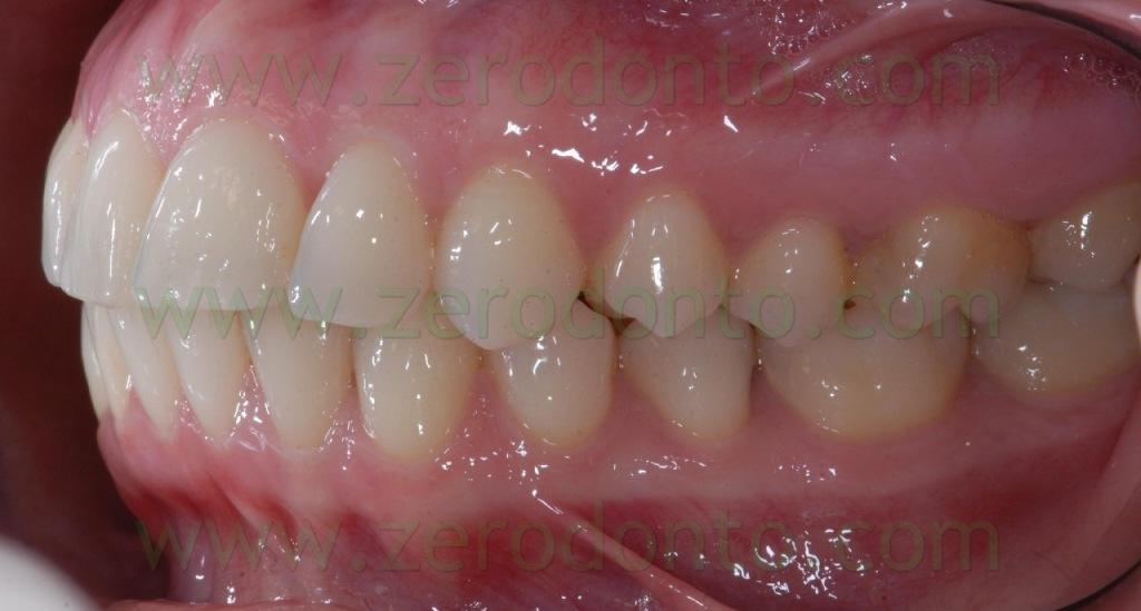 6-ortodonzia invisibile retainer