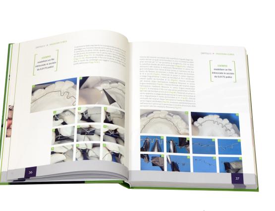 libro di ortodonzia invisibile 5