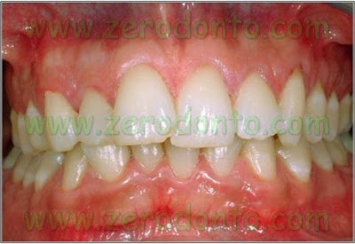1-denti-sovrapposti-affollamento-dentario