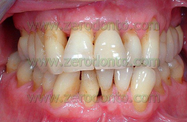 1-denti-storti-sporgenti-casi