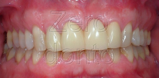 1-ortodonzia-invisibile-affollamento-denti