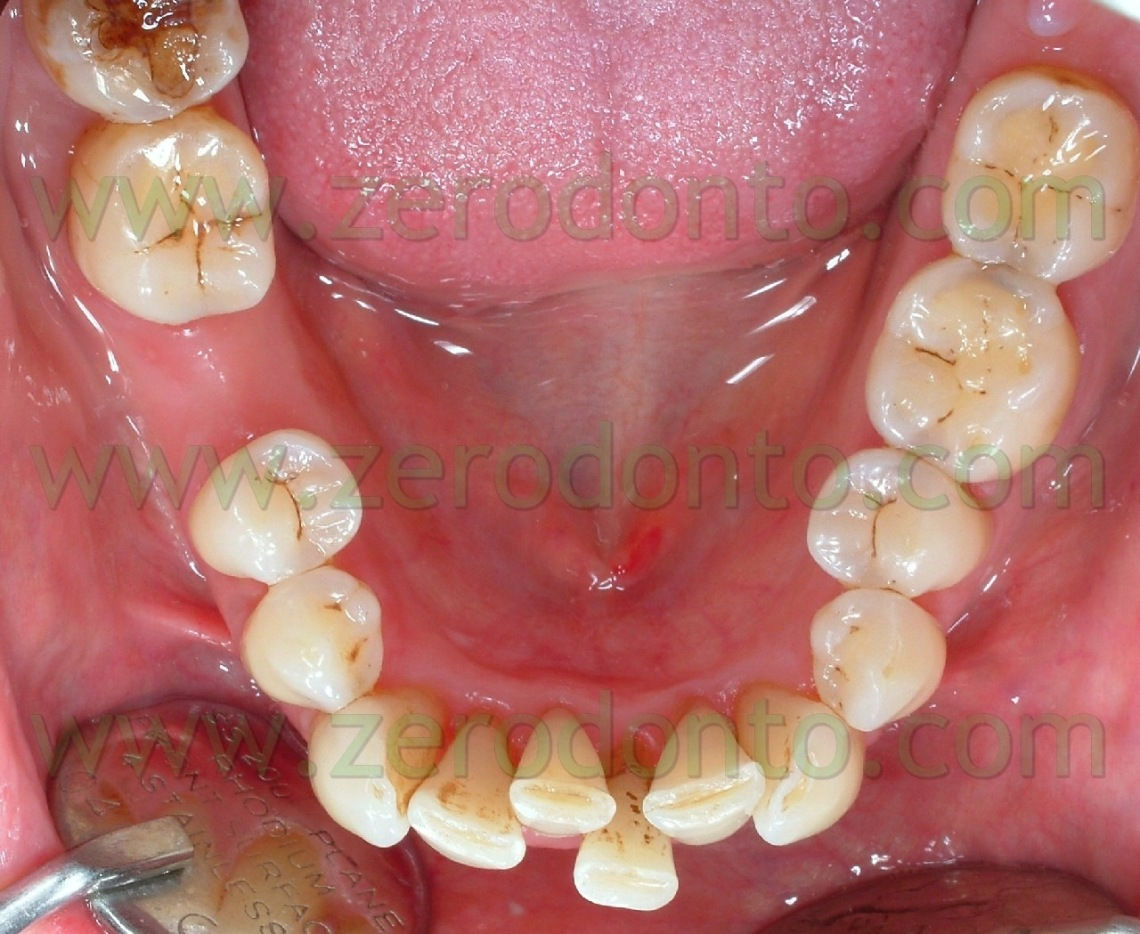 2-allineare-denti-ortodonzia-invisibile-1140x934