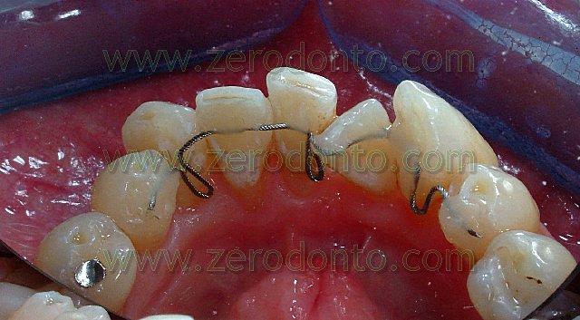 3-denti-sovrapposti