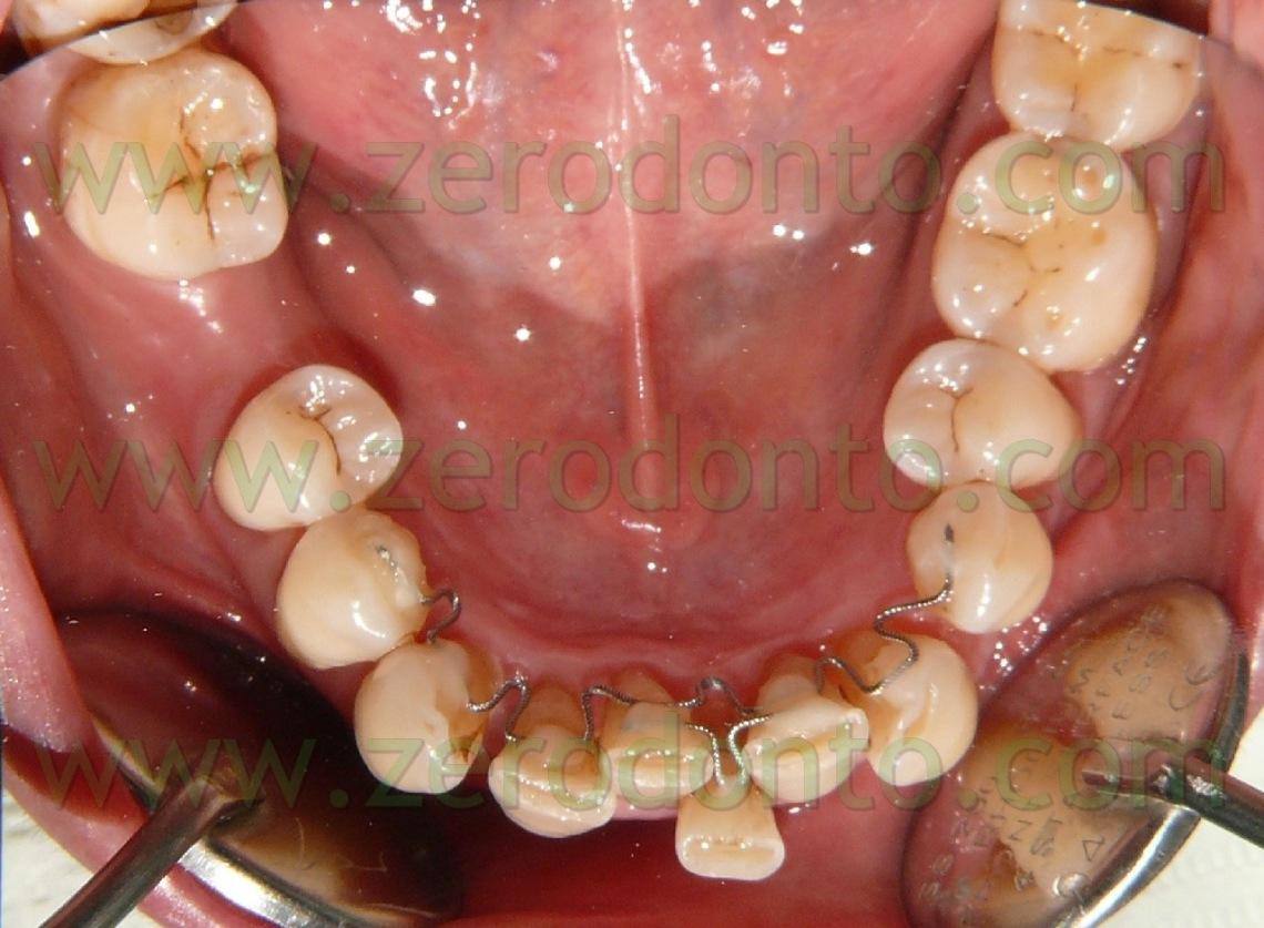 3-denti-storti-casi-complicati-1140x837