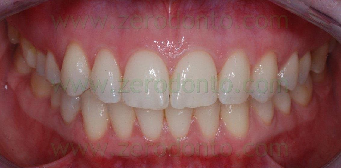 4-sorriso-perfetto-pochi-mesi-tecnica