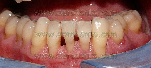 5-denti-allineati-tecnica-innovativa