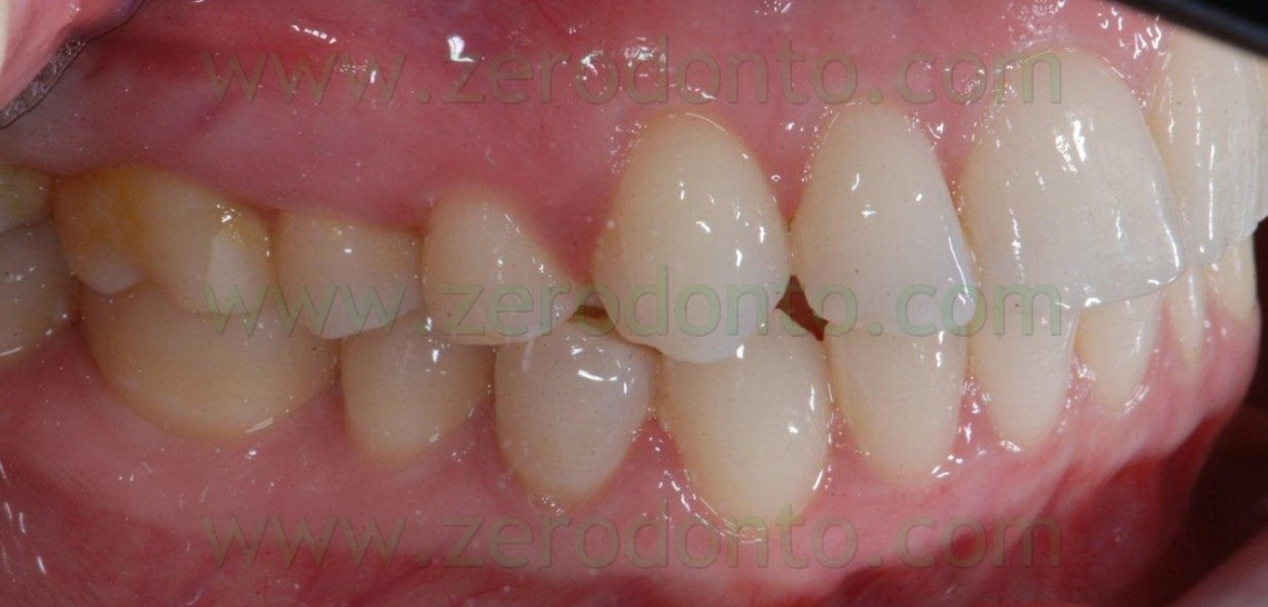 5-sorriso-perfetto-tecnica-allineamento-1140x546