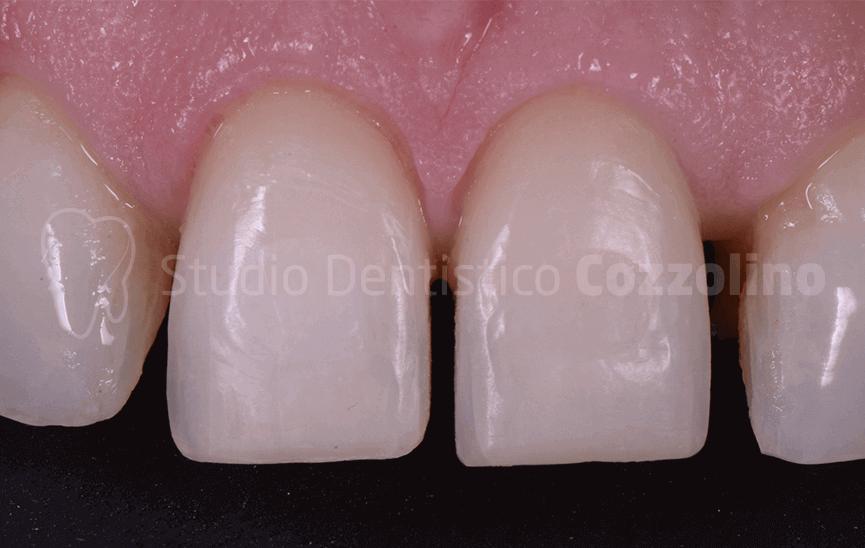 Veneers Crowns Lithium Disilicate
