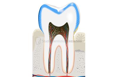 paradontite-studio-dentistico-cozzolino